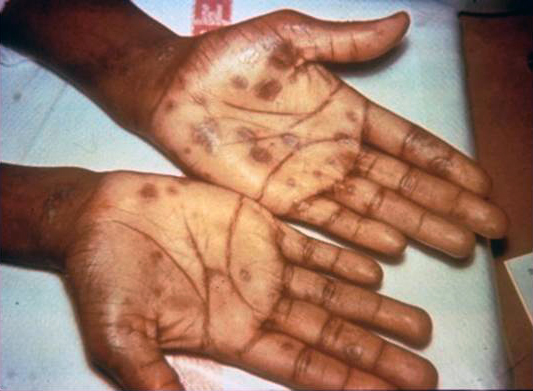 Secondary stage syphilis sores